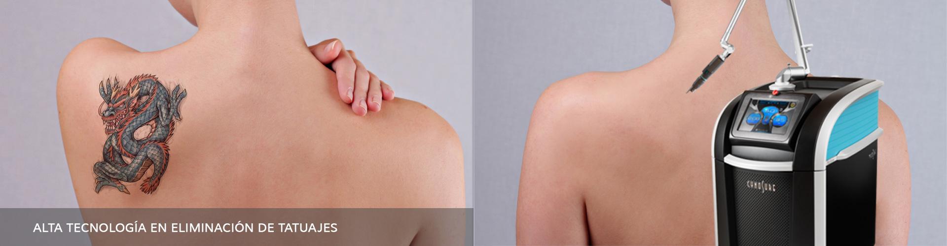 Aparatos-de-Estética-HIFU-Eliminacion-de-tatuajes-Arolaser-04